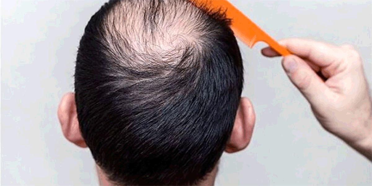 5 راه درمان ریزش مو